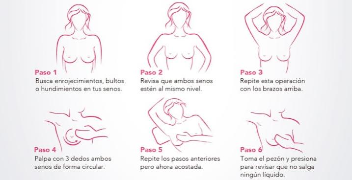 Cáncer de Mama   Instituto de Salud del Estado de México